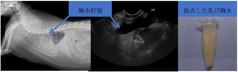 特発性乳び胸診断