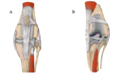 Fig.1 A:正常な膝関節 B 膝蓋骨内方脱臼