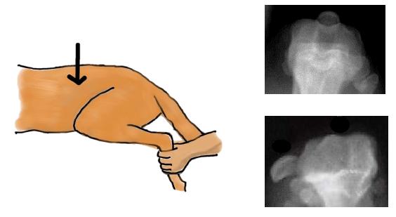 滑車溝形成術