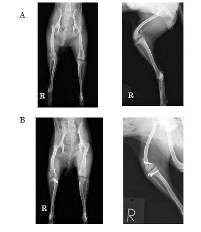 脛骨粗面転移術