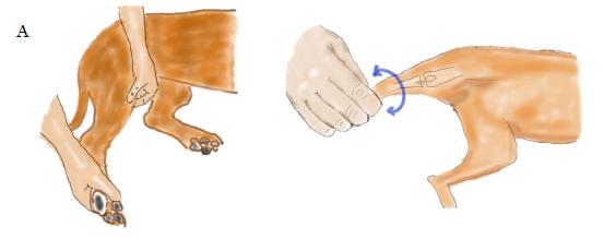 脛骨内方回転制御術