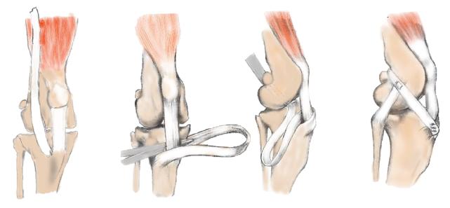 Fig.8 A:筋膜グラフトを作成