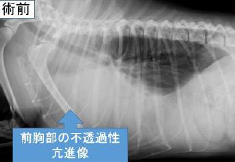 前胸部の不透過性亢進像