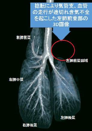 捻転により気管支、血管の走行が途切れ含気不全を起こした左肺前葉部の3D画像
