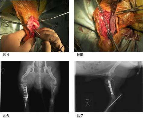 図4:術中写真 骨折端を確認
